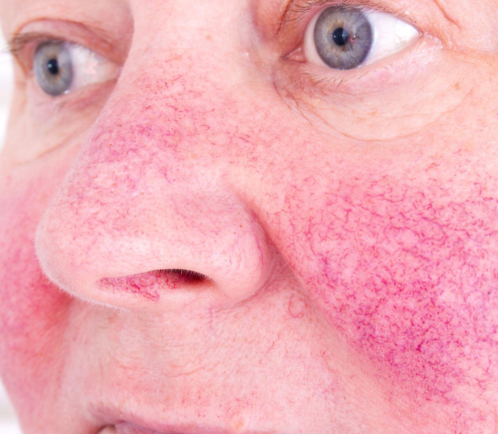 Postihuje jednu z desiatich: Začervenanie nie je chorobou, uberá na sebavedomí
