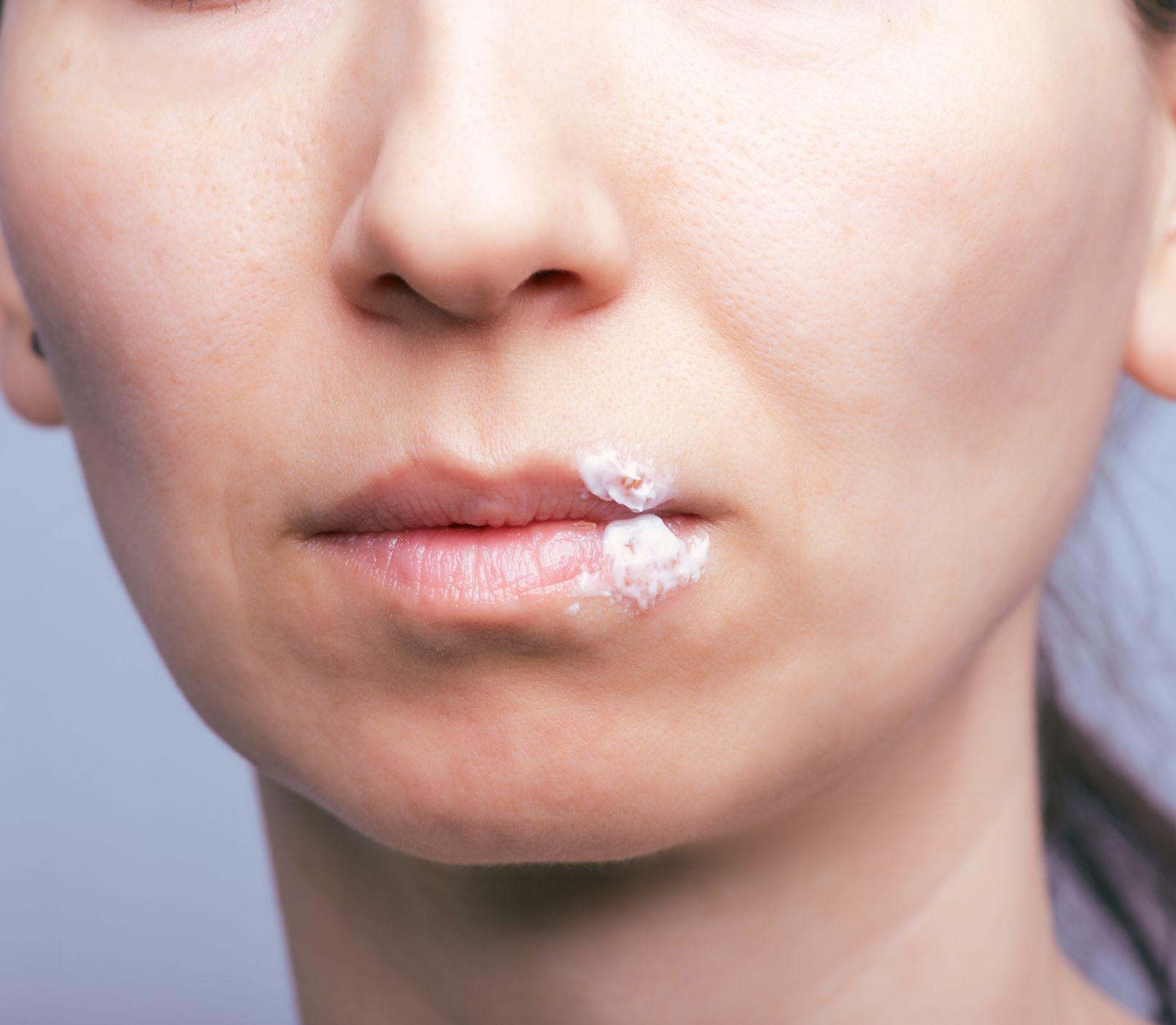 Herpes je boj na celý život: Pľuzgieriky neprepichujte, pomôžu i domáce recepty