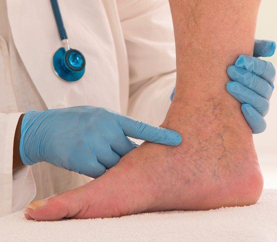 Keď sa objavia kŕčové žily: Ako prebieha vyšetrenie a liečba?