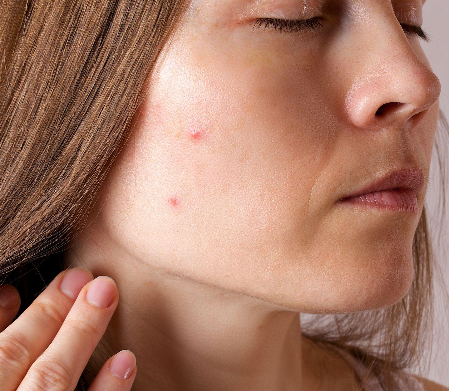 Akné trápi skoro polovicu dospelých žien: Poradíme, ako s ním bojovať!