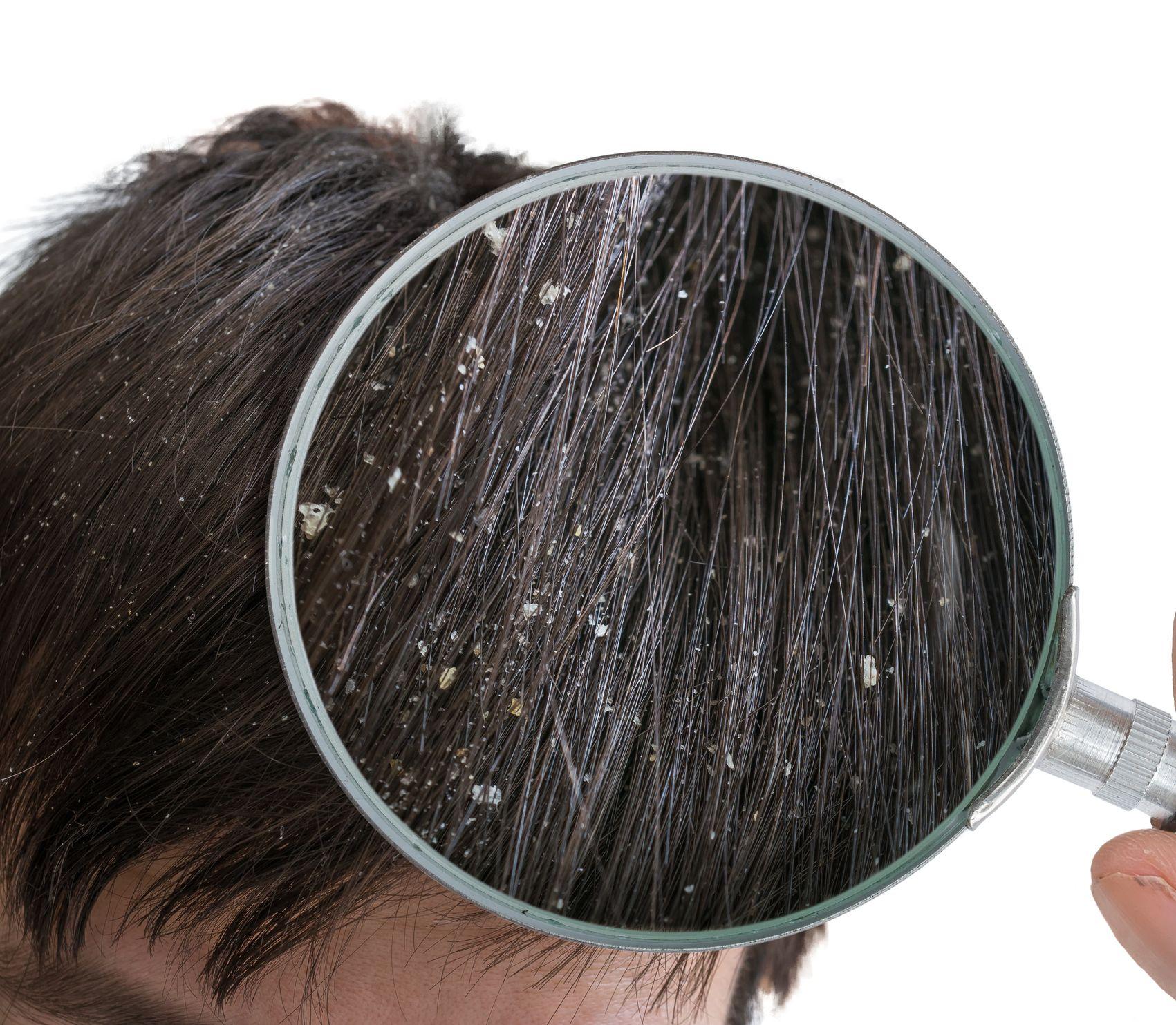 Získajte krásne vlasy bez lupín aj v zime: Ako sa zbaviť svrbenia a šupiniek?