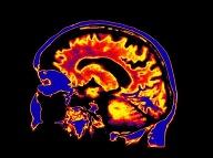 Tajný spúšťač ochorenia, ktoré pozvoľna vykráda mozog? Tohto obyvateľa má v tele každý z nás!