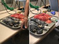VIDEO, ktoré vydesilo pol milióna ľudí: Pozrite sa, ako vyzerajú pľúca 20-ročného fajčiara!