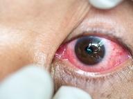 Znamenie, ktoré vám môže zachrániť život: Keď štrajkujú oči, myslite na najhoršie!