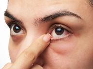 Vidíte počas čítania bodky v oku? Problém, ktorý vám môže skomplikovať život!